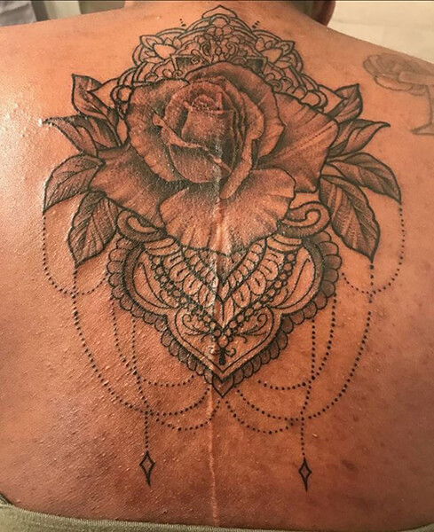 Rose tattoo covering a spinal fusion scar