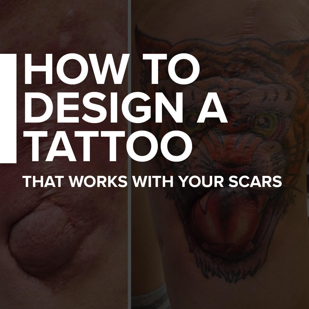 How To Design A Tattoo That Works With Your Scars Custom Tattoo Design